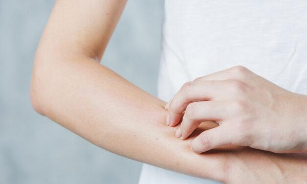 Allergia al nichel: diagnosi, cosmetici e alimenti
