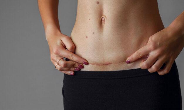 Come trattare le cicatrici e prevenire i cheloidi